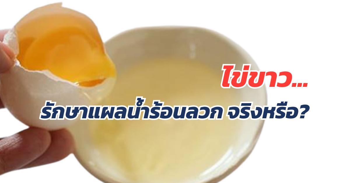 ไข่ขาวใช้รักษาแผลน้ำร้อนลวกได้ จริงหรือ?